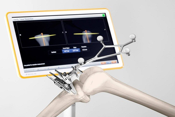Global Surgical Navigation Systems For Orthopedic Surgery Market 2019:  Strategies, Competitive Research & Growth By 2024 — Teletype